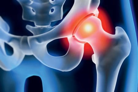 Syndrome d'accrochage de la hanche